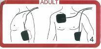 Platzierung DefiSign Life Elektrodenset